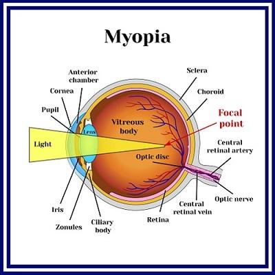 myopia-3