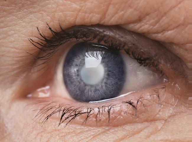 cataract-eye-one