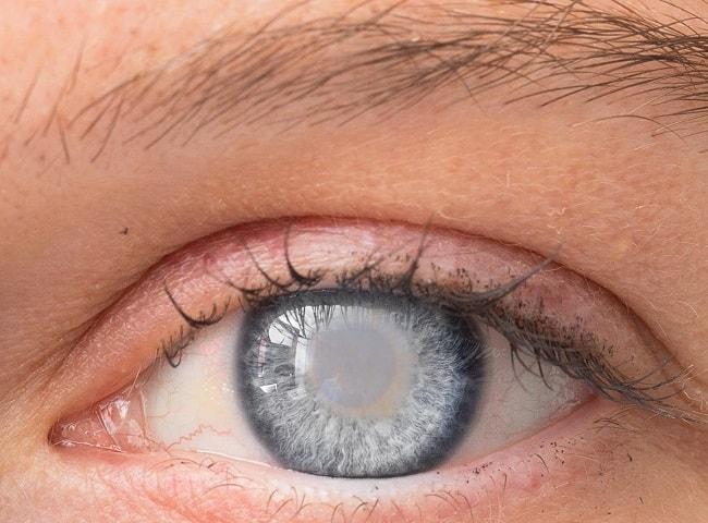 cataract-eye-two